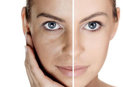 Antes y después del tratamiento con láser