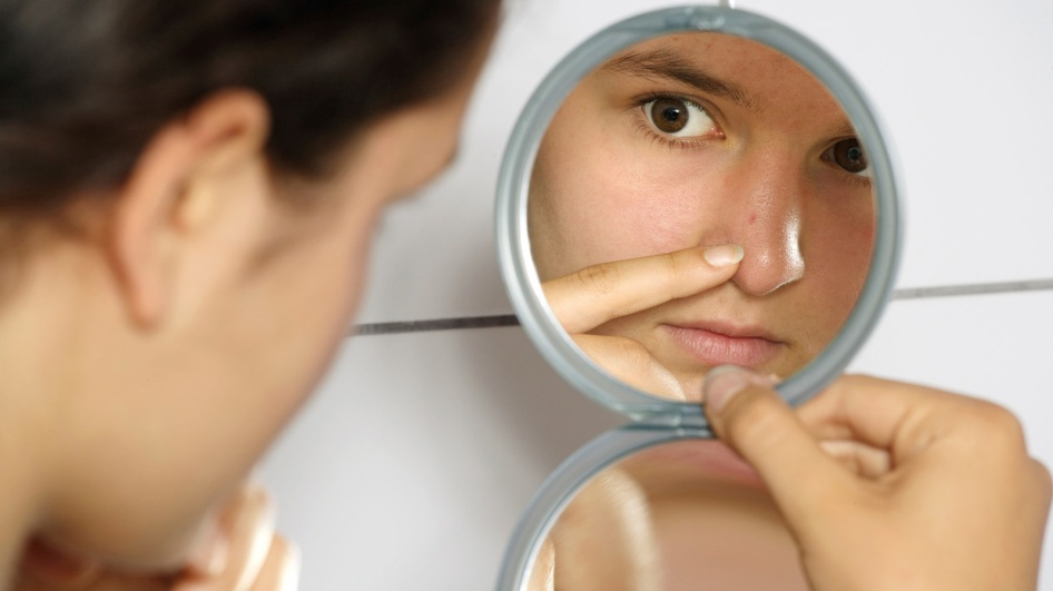 Cuidados del acné
