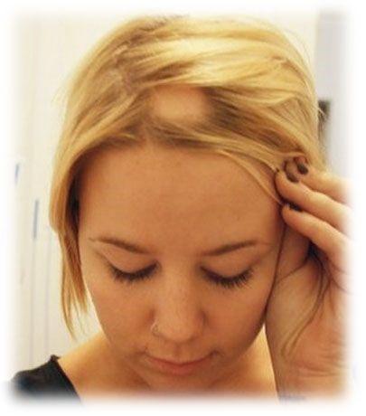 Caída del pelo por enfermedades