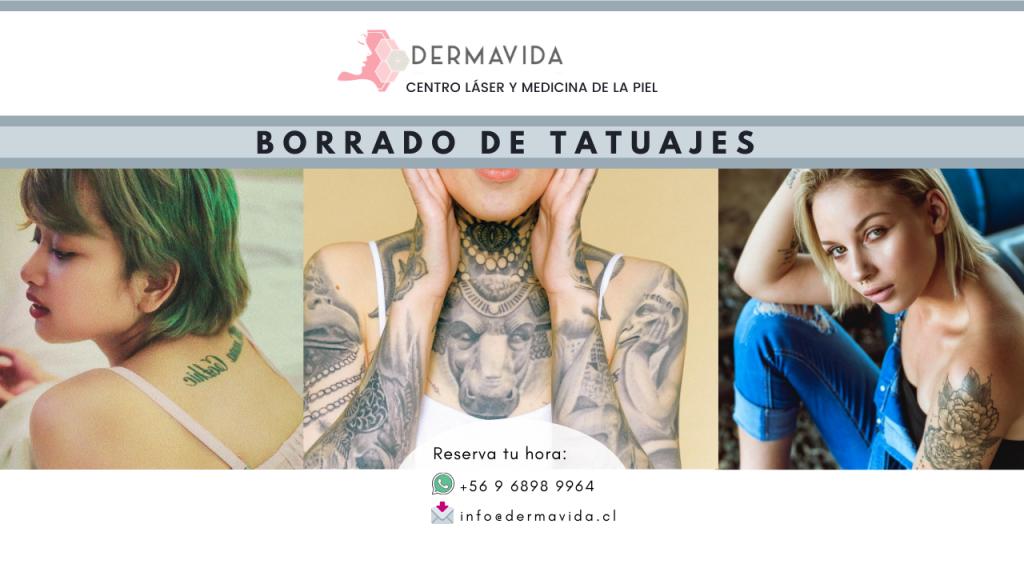 borrado-de-tatuajes-con-laser-dermavida